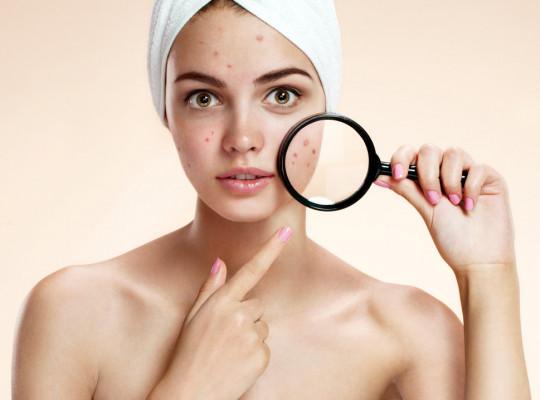 Dnešní tip pro krásnou pokožku - Akné